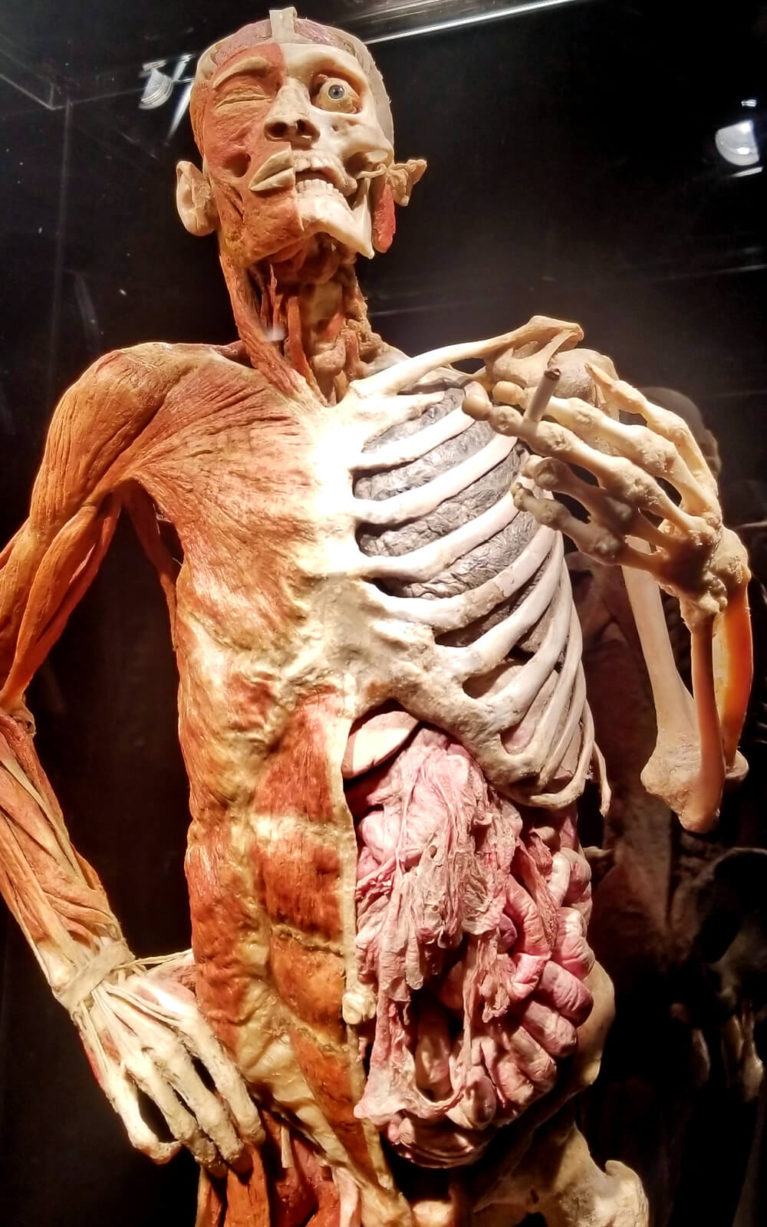 One of the Exhibits at Body Worlds RX in Sudbury's Science North :: I've Been Bit! Travel Blog